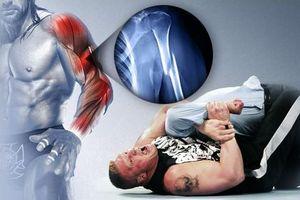 Resultados #28 RAW Supershow [Charlotte, North Carolina]  20120502_EP_LARGE_TripleH-Injury-Revision_large