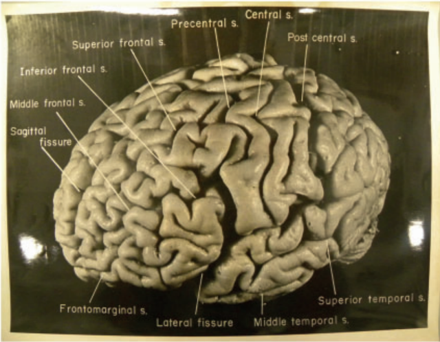 Einstein brain