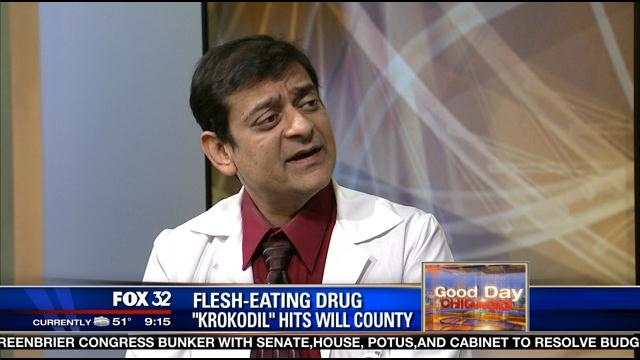 my fox chicago krokodil