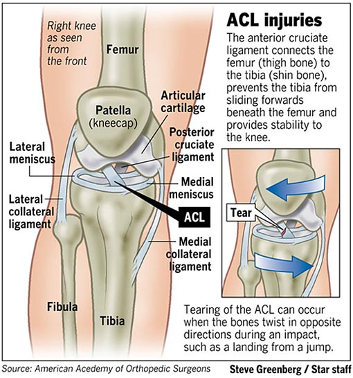 Acl Injuries  Football  And Me