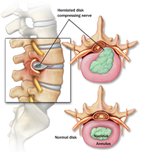 Herniated-disc-injuries-279x300_medium