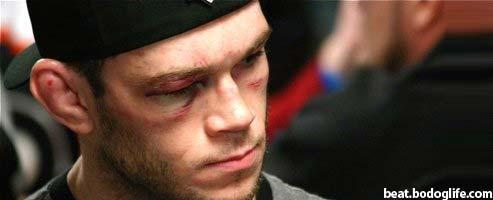 Forrest Griffin after UFC 86