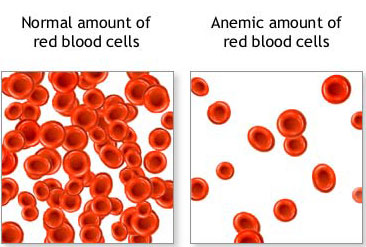 Anemic-blood-cells_medium