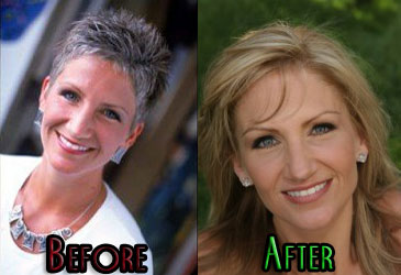 Brenda_warner_before_after_medium