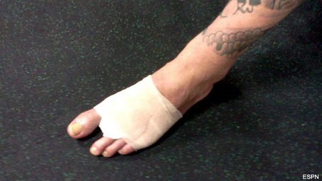 Couture_coach_loses_toe_to_mma_medium