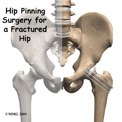 Hip_pinning_intro01_medium