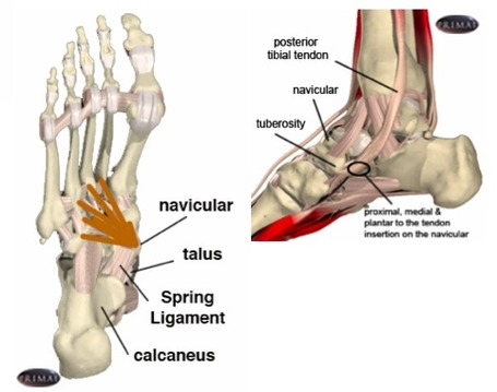 Navicular-posterior-tibial_medium