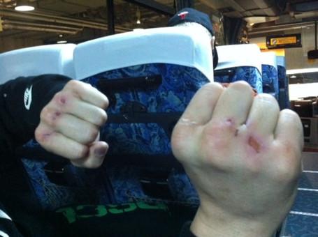 Как сделать себе большие кулаки 228