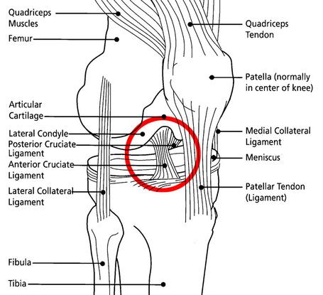 acl diagram  #7